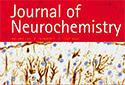 小児の神経難病に関する論文データがJournal of Neurochemistry誌の表紙写真に採用されました